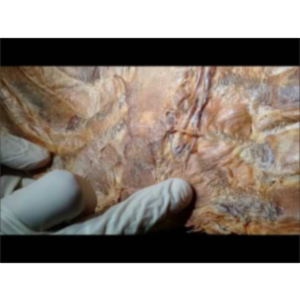 Anterior Thoracic Wall Surgical Anatomy -Sanjoy Sanyal icon