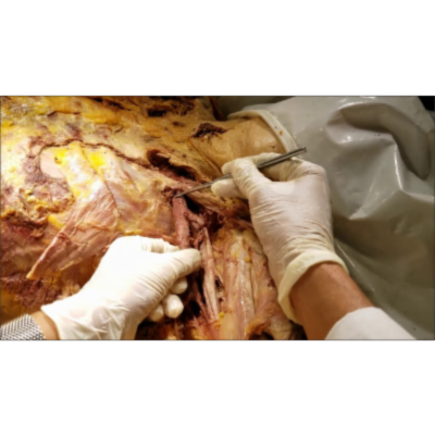 Post-Axillary Clearance Brachial Plexus-Axillary Vessels Demonstration-Sanjoy Sanyal
