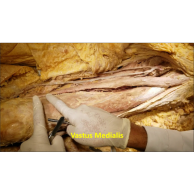 Thigh Anterior Compartment-Quads Dissection - Sanjoy Sanyal icon