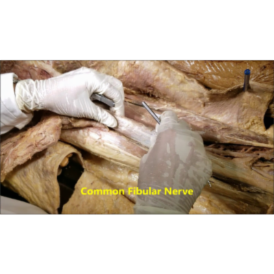 Thigh Hamstring Compartment Muscles Dissection-Popliteal Artery Entrapment - Sanjoy Sanyal