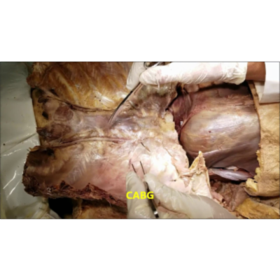 Thoracic Wall Vascular Dissection Part 2-Thoracentesis-Thoracotomy Demonstration - Sanjoy Sanyal icon