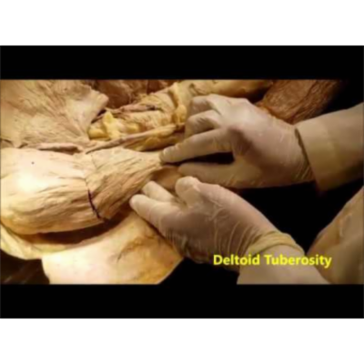 Deltoid Muscle and Axillary Nerve Dissection - Sanjoy Sanyal icon