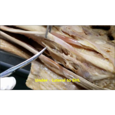 Anterior Leg - Foot Dorsum Muscles Nerve and Artery - Sanjoy Sanyal icon