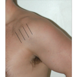 Ultrasound of the Shoulder icon