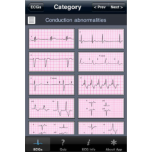 ECG Pocket Reference App for iOS