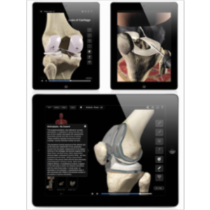 Knee Pro III with Animations App for iPad