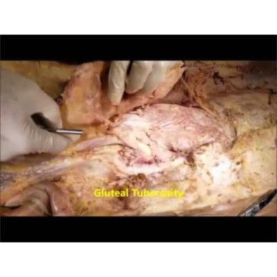 Superficial Glute Muscles Dissection And Trendelenburg Sign-Sanjoy Sanyal icon