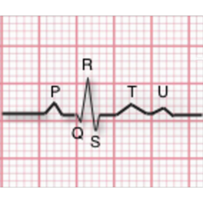 EKG Interpretation | Tutorials and Quizzes icon