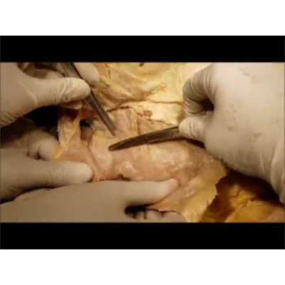 Abdominal Wall-Rectus Sheath-Myopectineal Orifice Dissection-Inguino Femoral Hernias - Sanjoy Sanyal
