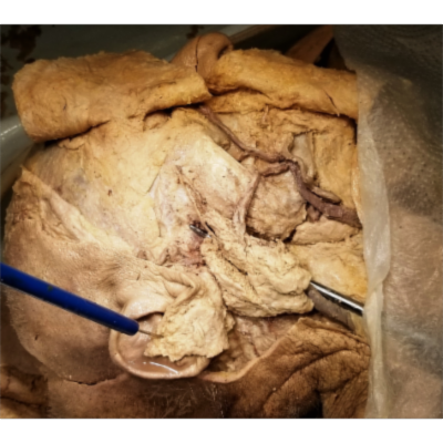 Parotid Gland and Stensen Duct Dissection – Exhaustive ClinicoAnatomical Review – Sanjoy Sanyal icon