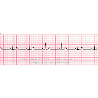 EKG Interpretation Practice