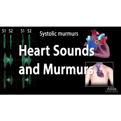 Heart Sounds and Heart Murmurs, Animation. icon